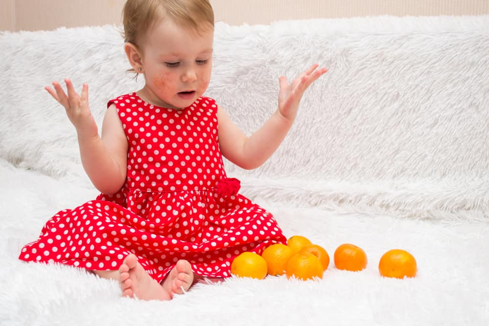 little girl with skin conditions sits with citrus fruits