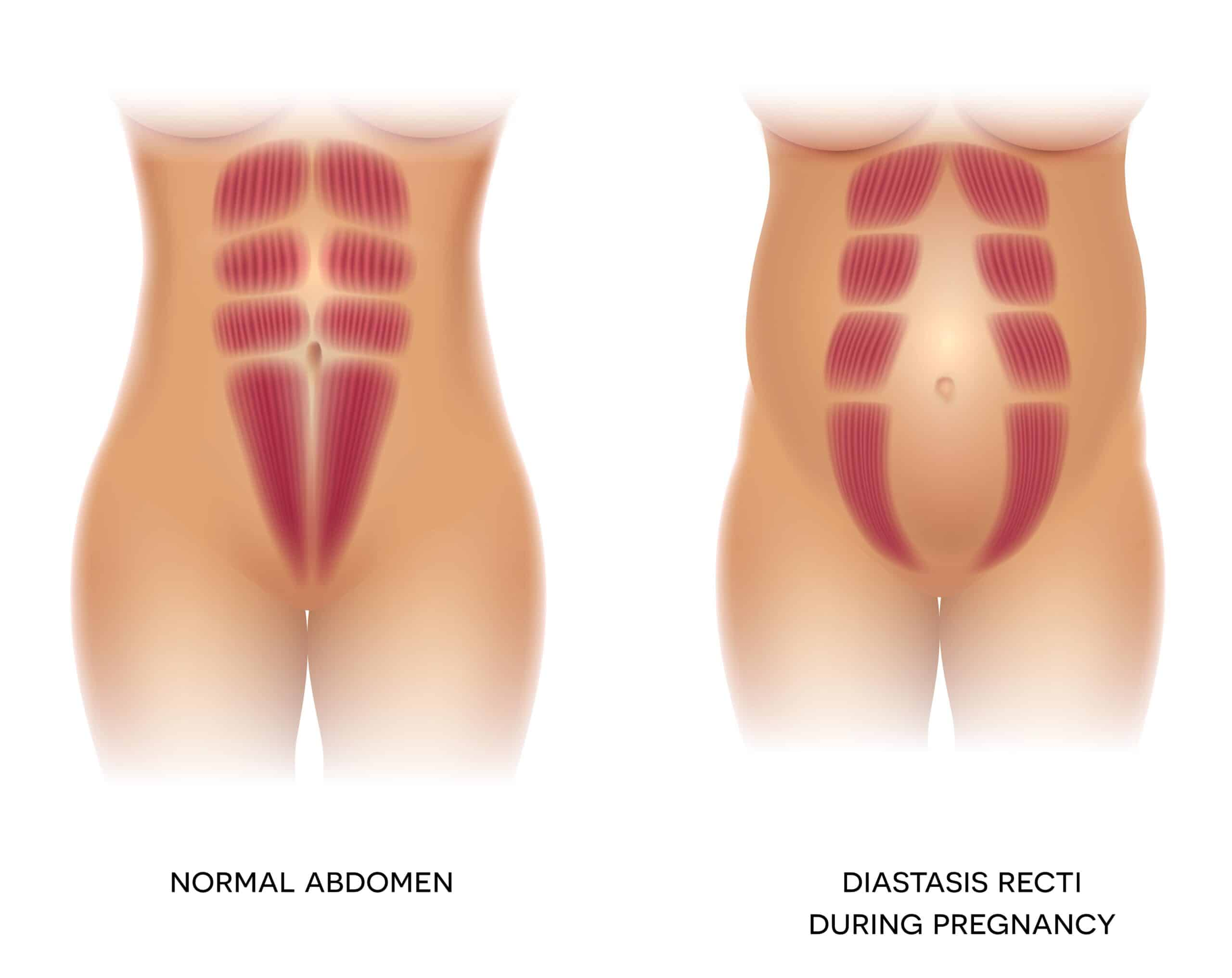 diagram of diastasis recti normal abdomen vs. during pregnancy