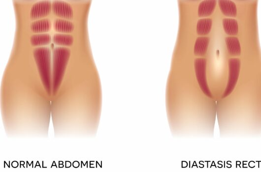 How to Prevent Diastasis Recti and Snap Back After Pregnancy