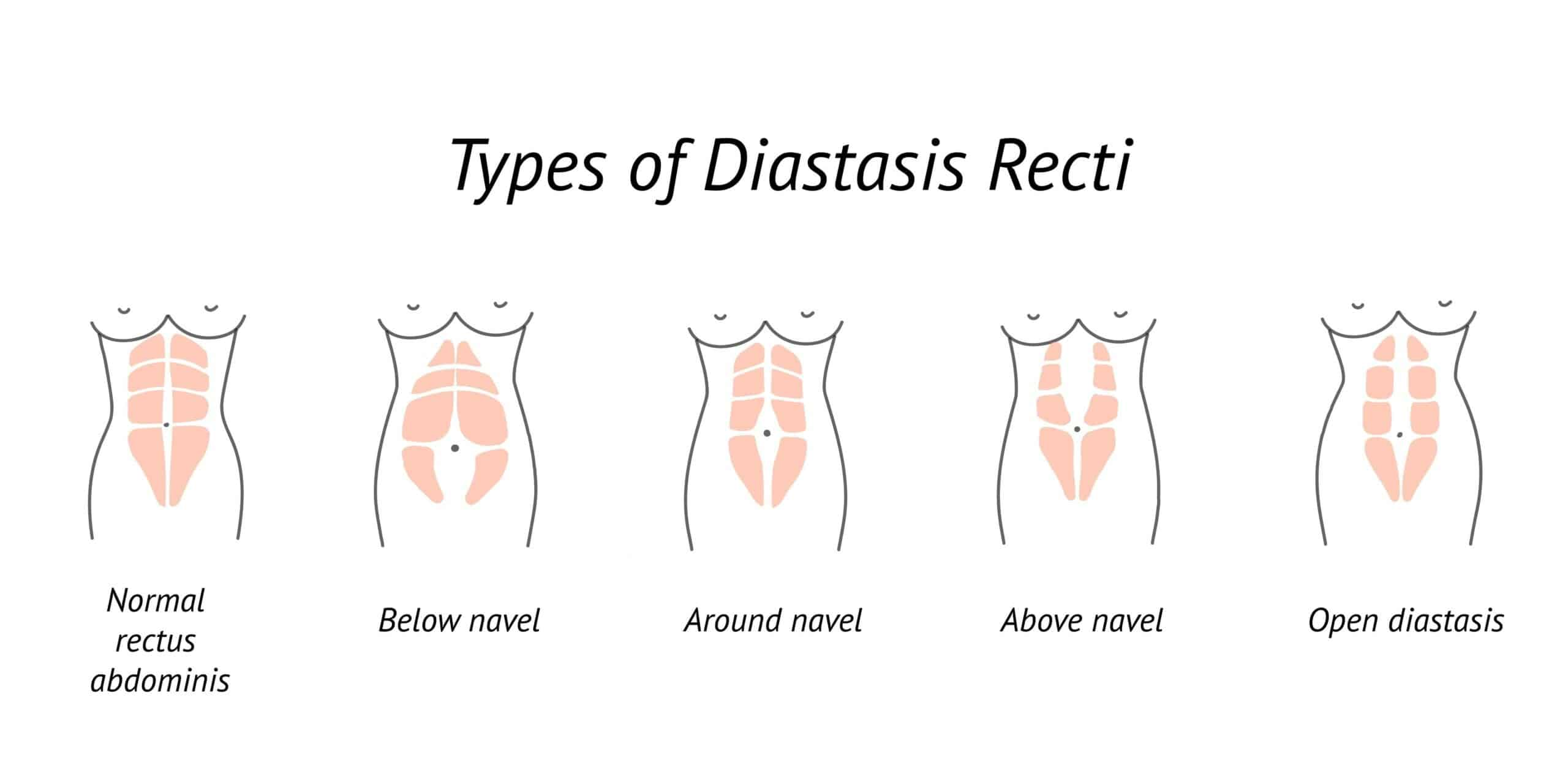 types of diastasis recti