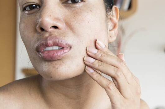 Dry Skin During Pregnancy: Why It Happens and What to Do
